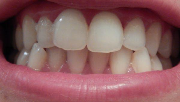 PS Smile Whitening : le blanchiment dentaire par Primark
