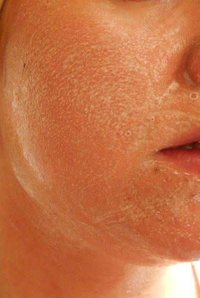 DSCN8428 403x600 - Vichy Normaderm Phytosolution : soins pour les peaux acnéiques