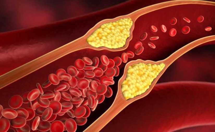 Cara Cepat Rawatan Menurunkan Kolesterol Tinggi