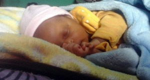 BEFORE: Baby Lwandle's arm had to be amputated after alleged negligence by staff at Bernice Samuel Hospital, Delmas. Image: SUPPLIED