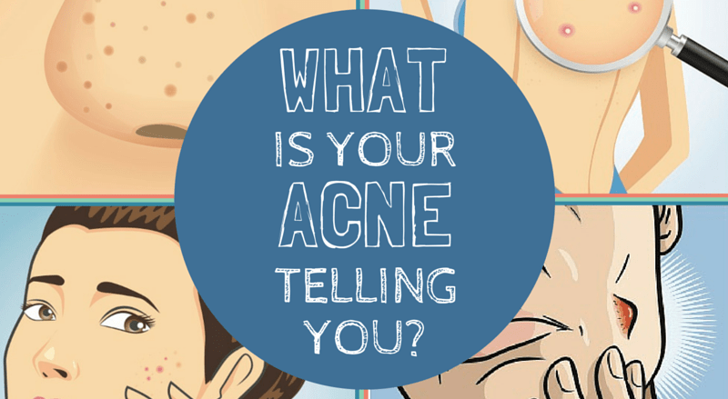 what does acne reveal about your health