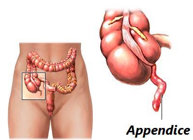 appendice