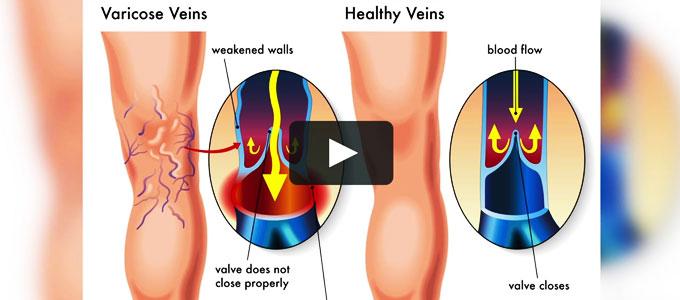 metode populare varicoza care a ajutat oțetul în varicoză
