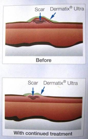 Harga Dermatix dan Manfaat Dermatix Ultra