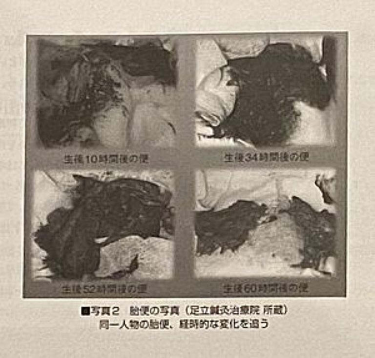 胎便の写真(モノクロ)