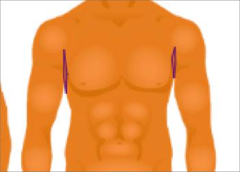 underarms