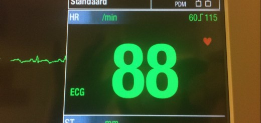 hartbewaking cardiologie 03-08-2015