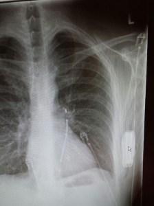 S-ICD röntgenfoto
