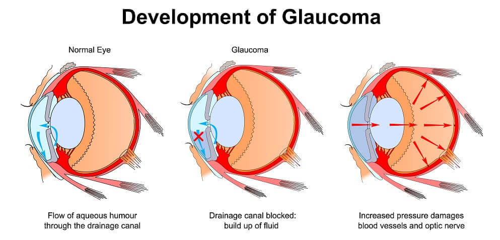 How Glaucoma Develops In The Eye Open Angle And Angle Closure