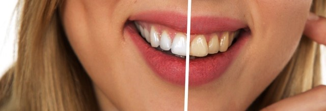 Habit is what spoils our teeth and habit is what can get us whiter teeth