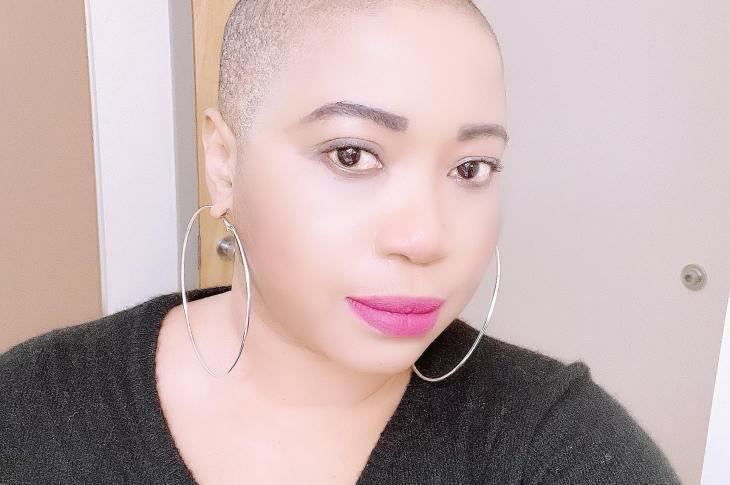 Bridget goes bald, no hair by choice?