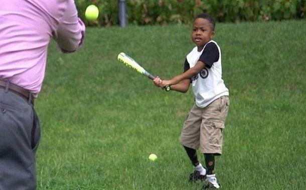 نجاح مذهل.. طفل يلعب الرياضة بعد عامين على زرع يدين له