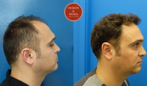 hair transplant patient before and after photos