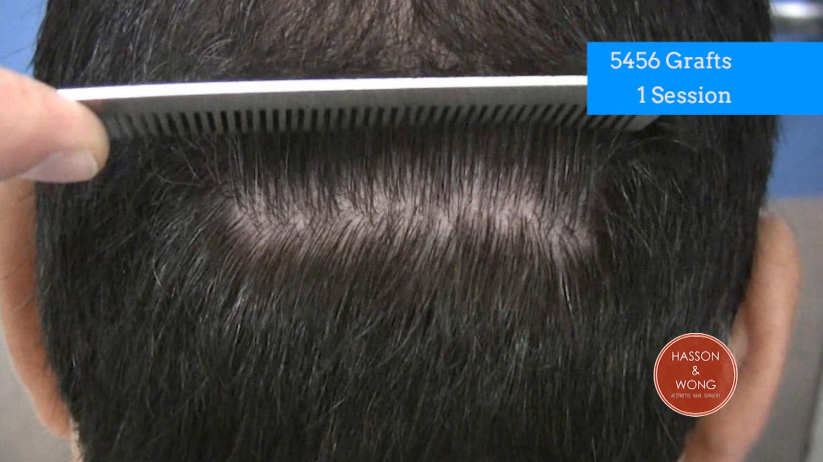 photo of hair transplant scar