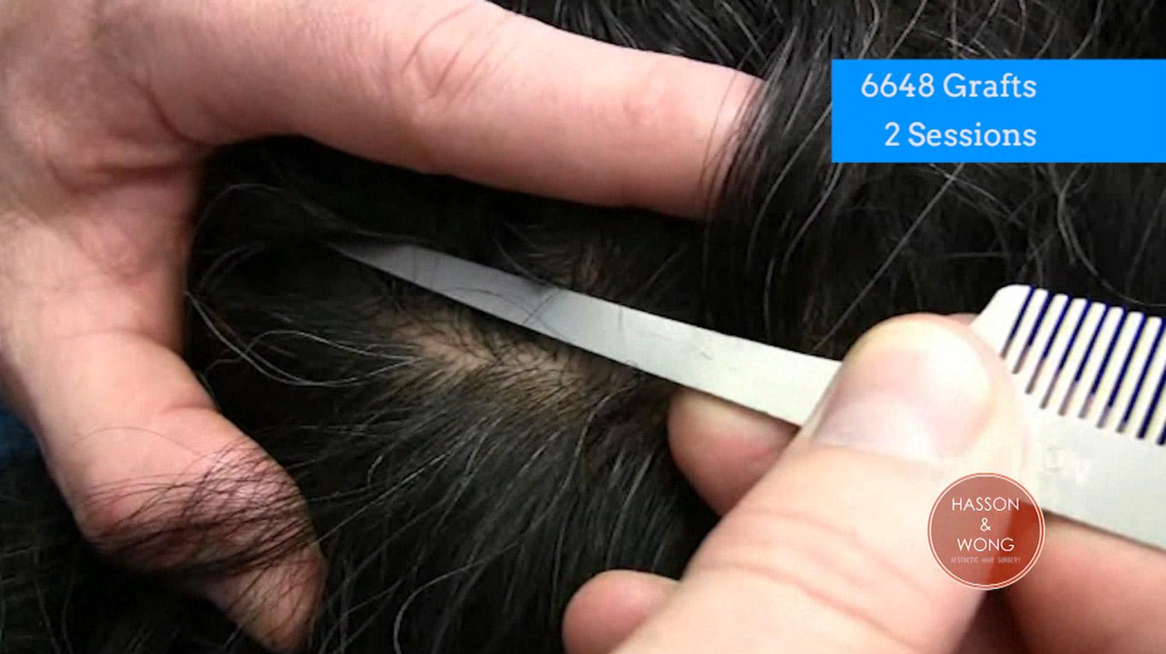 Hair transplant scar after hair transplant surgery