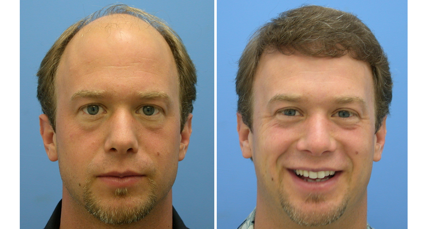 Hair Transplant Review photos before and after hair transplant patient