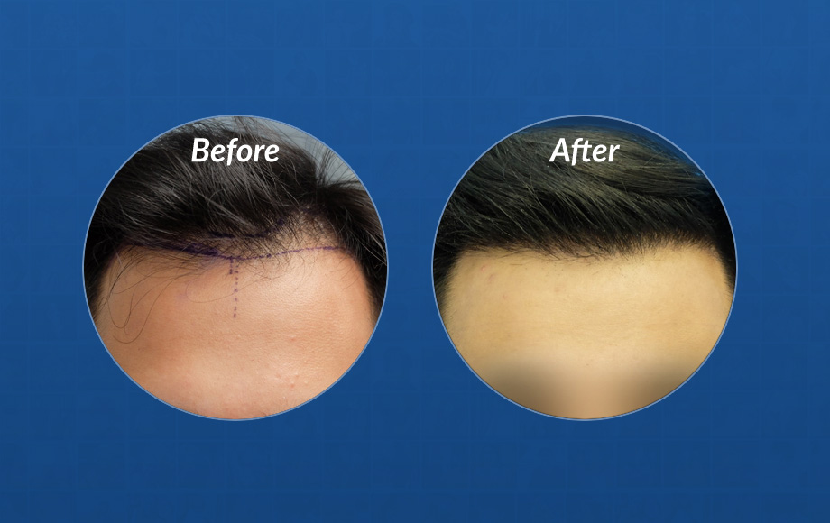 FUE hair transplant timeline featured image