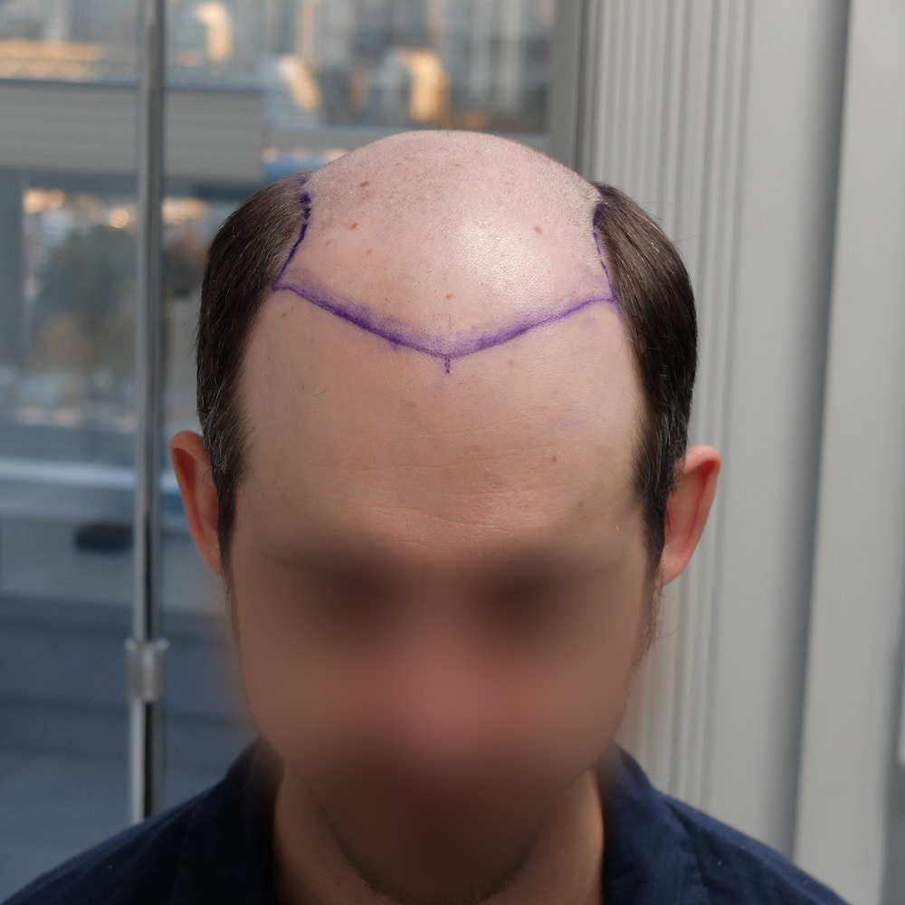 hairline of hair transplant patient the day of surgery of 5599 grafts