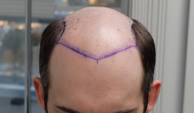 hair transplant story and before after photos