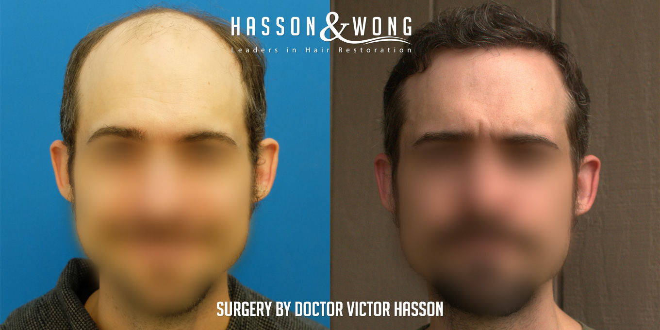 hair transplant before and after 5599 hair transplant grafts