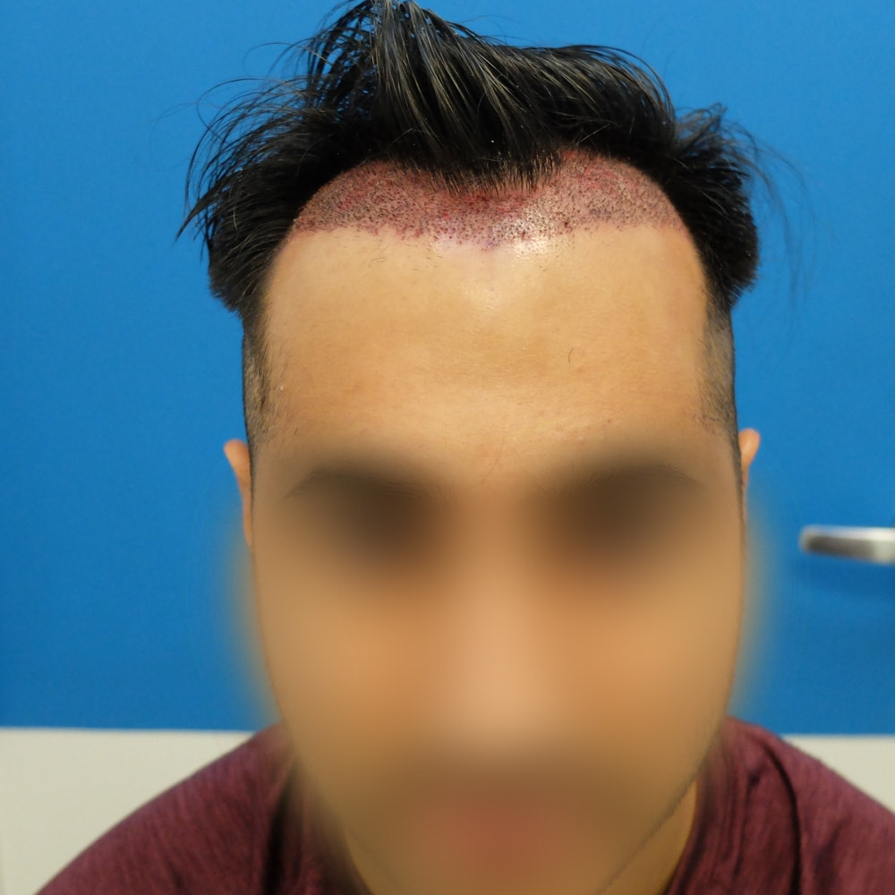 hair transplant side effects bleeding day after surgery