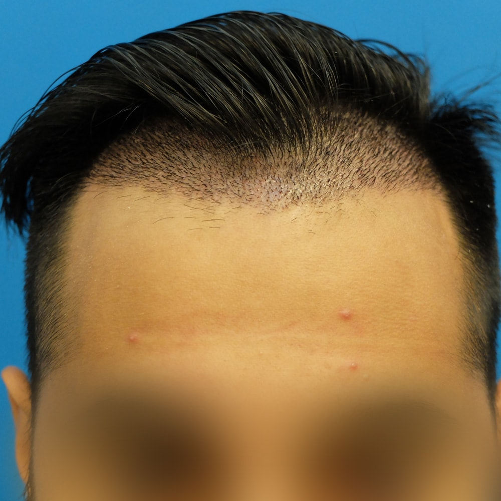 hair transplant side effects scabbing 10 days post op