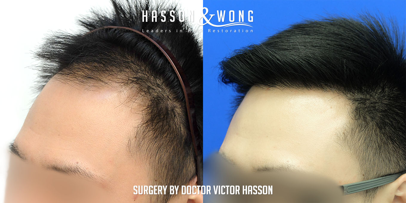 FUE hair transplant before and after FUE surgery of 2575 grafts left temple
