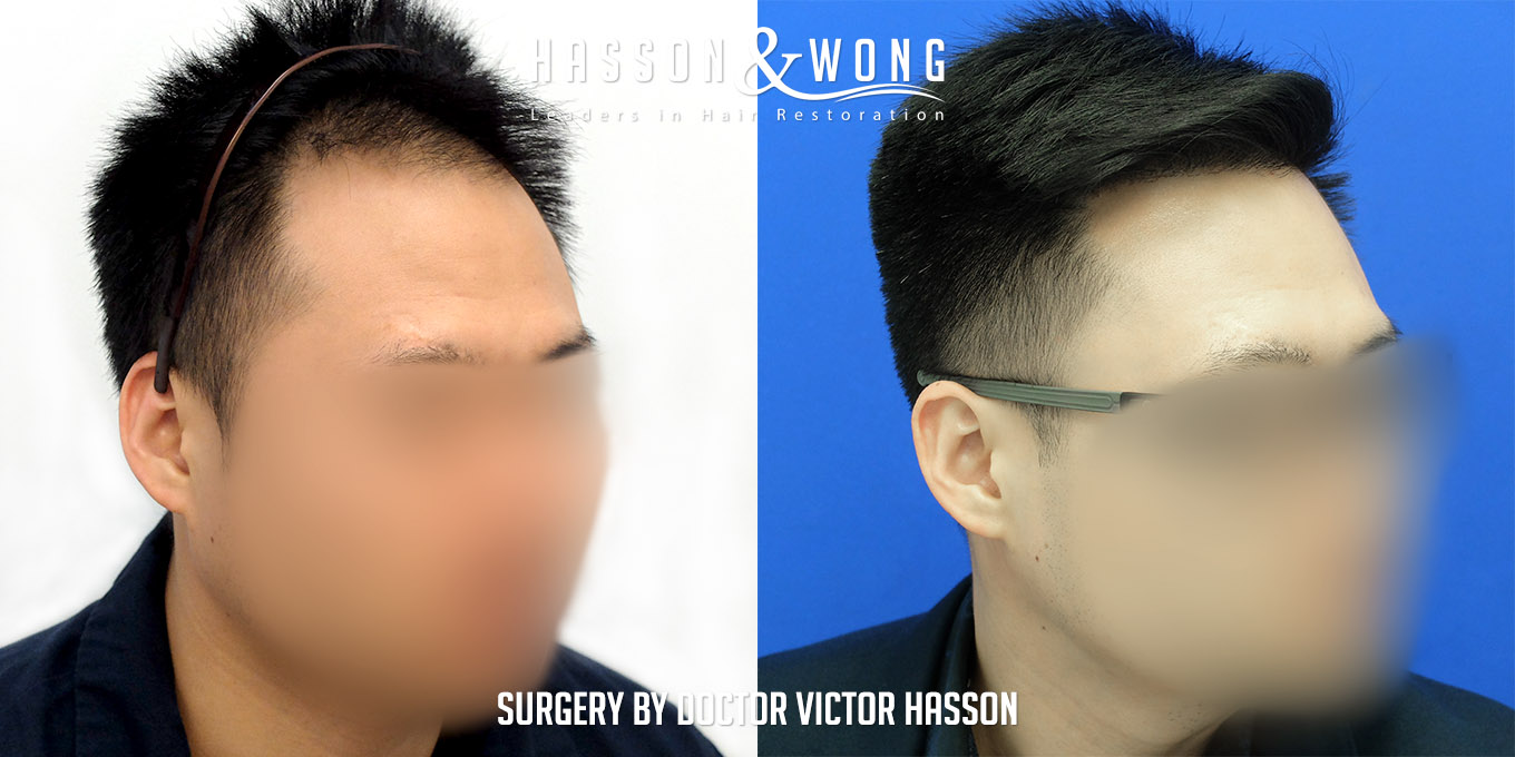 FUE hair transplant before and after photo results comparing FUE hair transplant patient's right temple