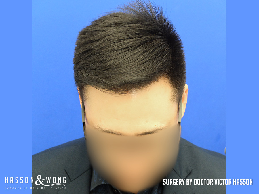 FUE hair transplant surgery photo front tile view of patient's hair after 2575 FUE hair transplant grafts