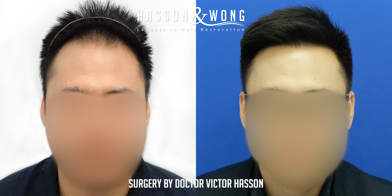 FUE hair transplant side by side before and after results after 25875 FUE hair transplant grafts