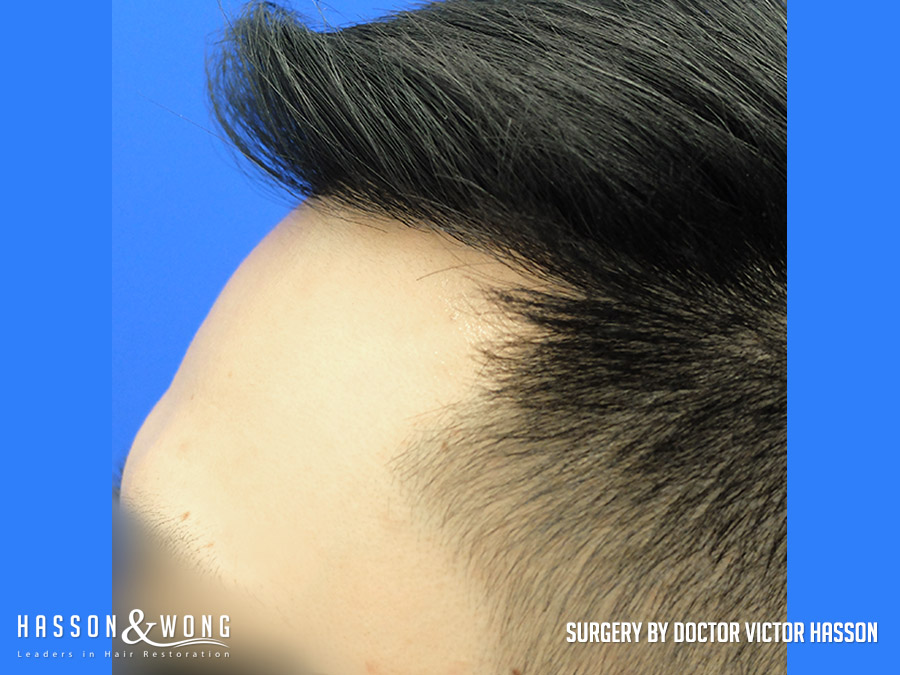 FUE hair transplant surgery image left closeup of temple view of patient's hair after 2575 FUE hair transplant grafts