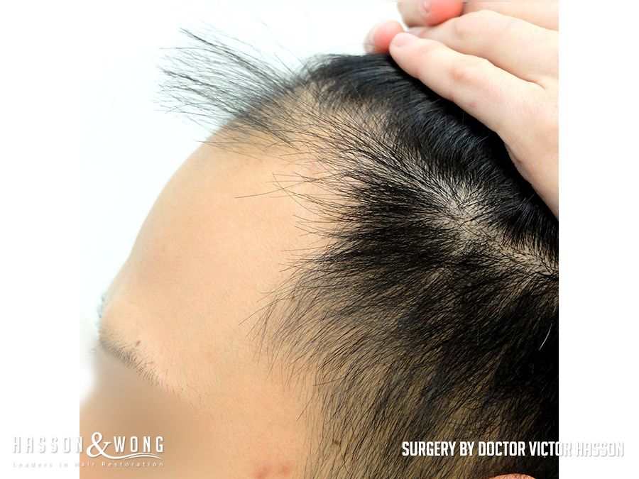 FUE hair transplant surgery photo left side view of patient's hair with hair pulled back before 2575 FUE hair transplant grafts