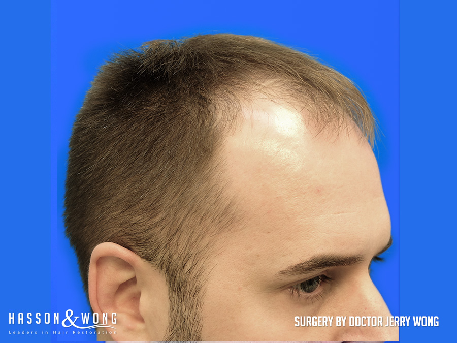 before hair transplant 3654 FUE grafts right side view