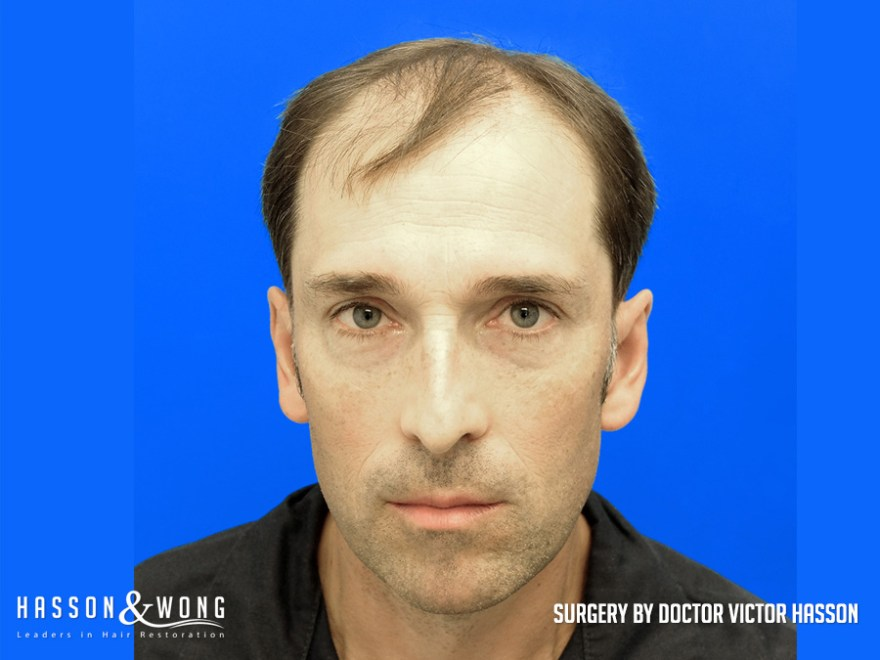 Photo of FUT hair transplant patient before surgery of 6514 grafts Front view of the patient's face