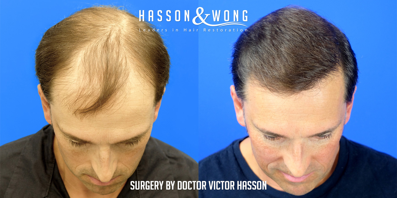 before and after hair transplant surgery of 6514 grafts side by side front view tilt of head