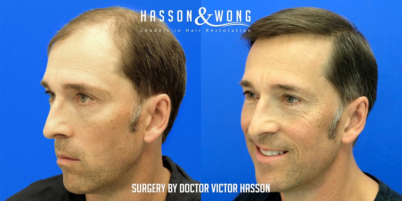 before and after hair transplant surgery of 6514 grafts side by side left temple view