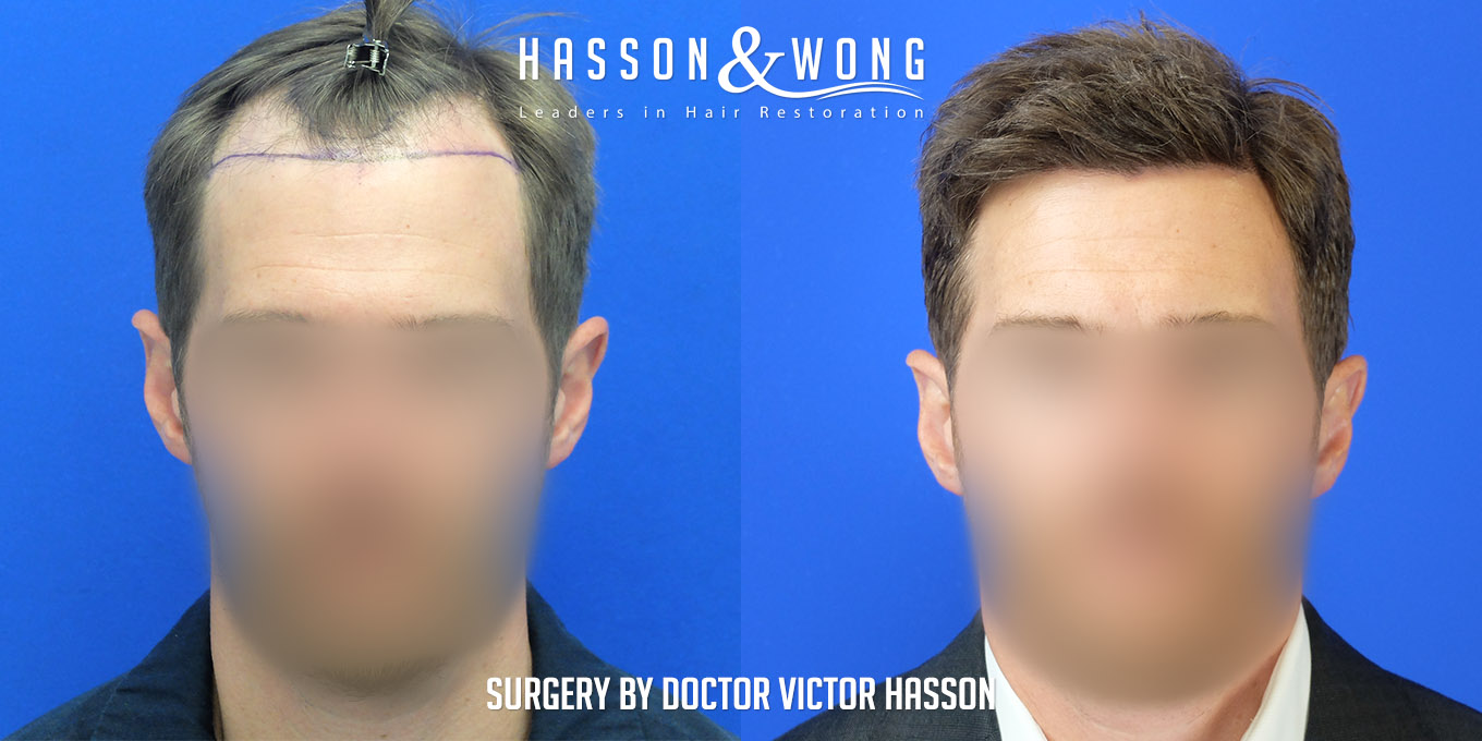 FUE hair transplant before and side by side of full front after 4035 grafts