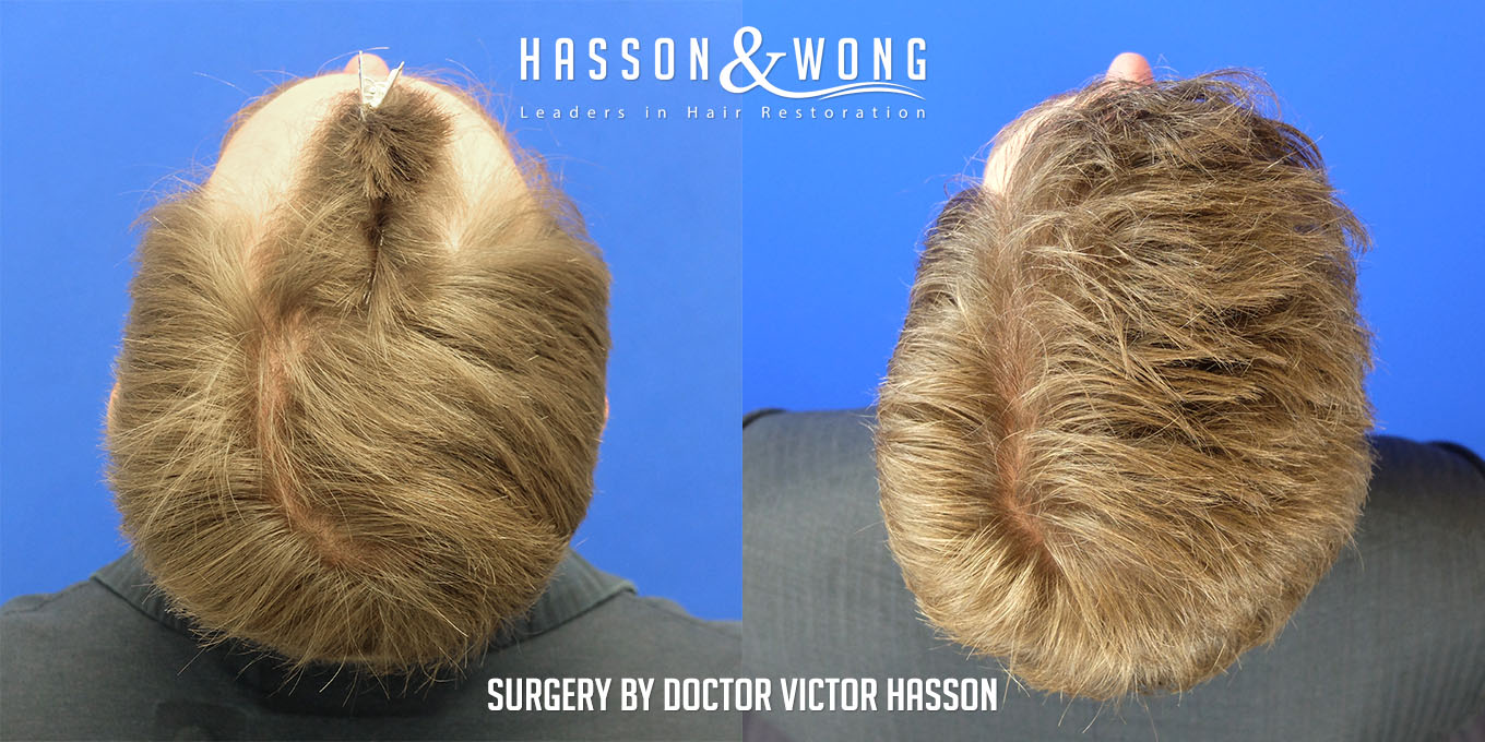 FUE hair transplant before and side by side top view of patient's head after 4035 grafts