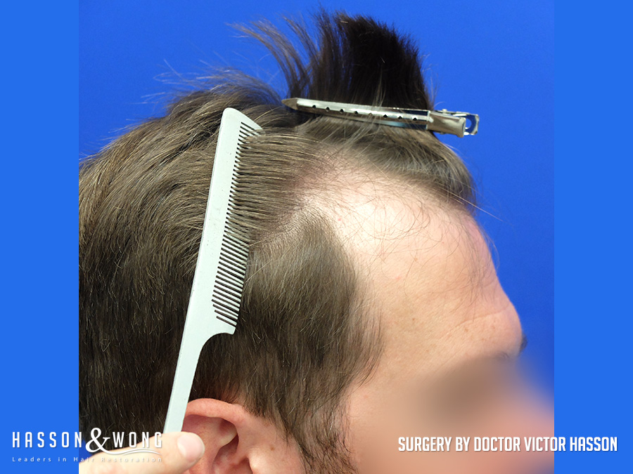 4035 graft FUE hair transplant right temple before surgery