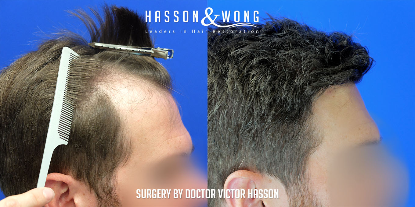 FUE hair transplant before and side by side right side view after 4035 grafts