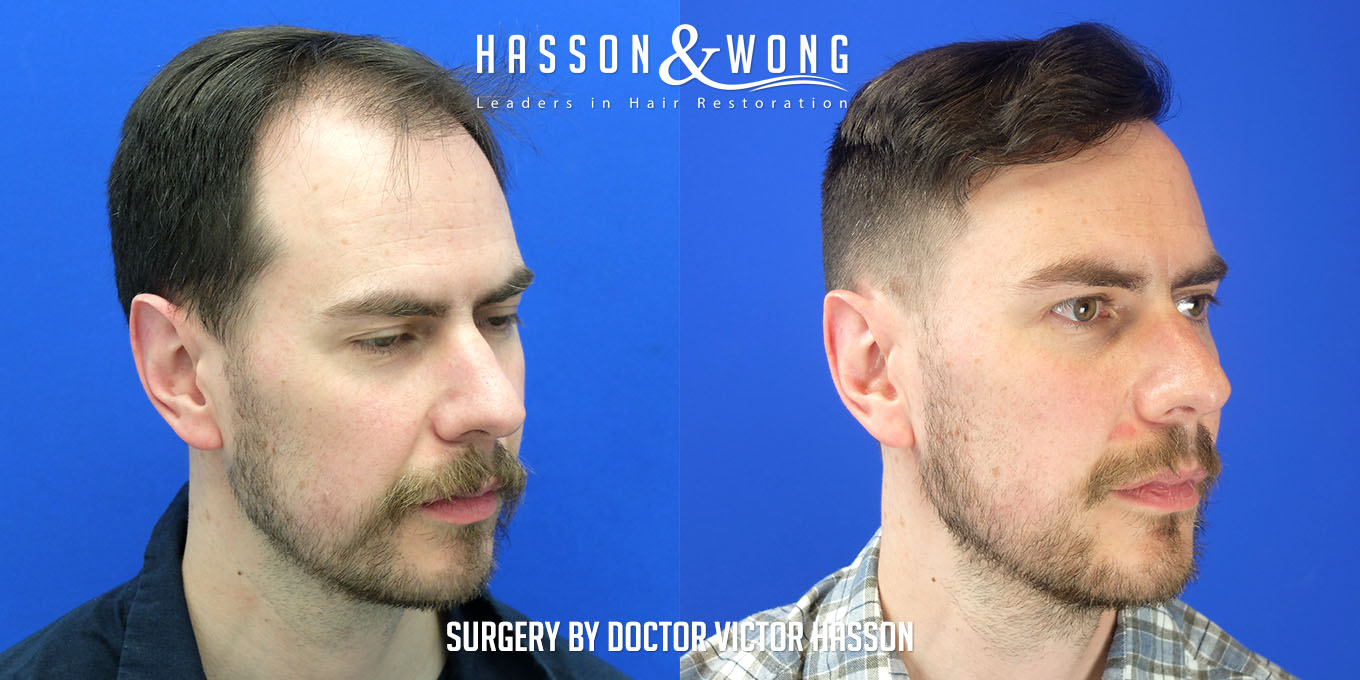 right temple before and after FUE hair transplant comparison after a 3000 graft surgery