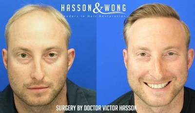 best hair transplant before and after results