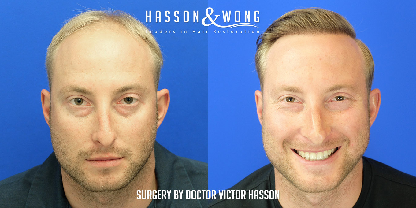 fue hair transplant 4000 grafts before after