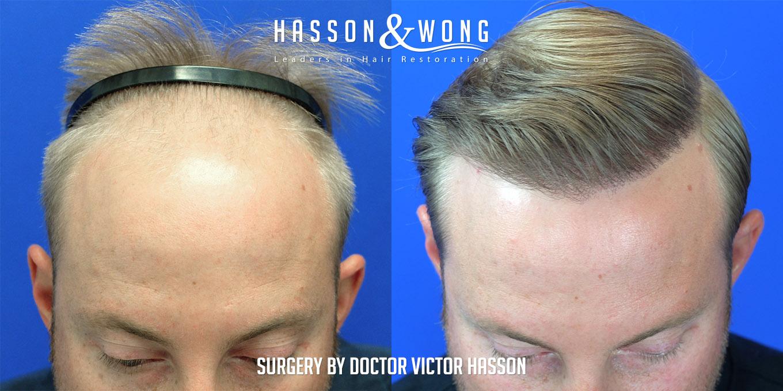 fue hair transplant 4000 grafts