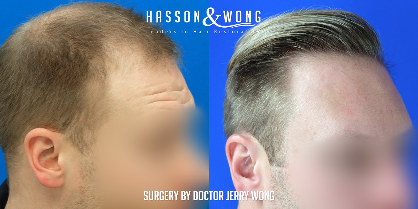 2019 hair transplant results multiple surgery patient
