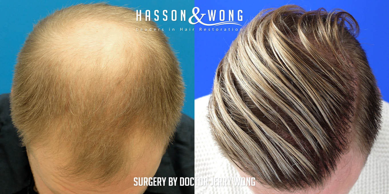 hair transplant before after top view 8000 grafts