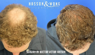 crown hair transplant surgery before and after featured