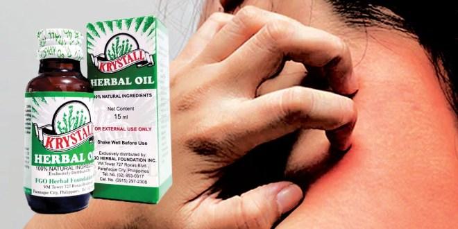 Dalawang taon pangangati ng batok pinagaling ng Krystall Herbal Oil