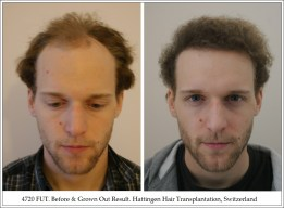 Hair Transplant Results. Hattingen Hair Transplantation (9)