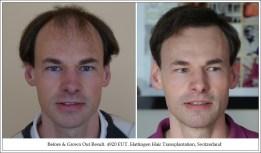 Hair Transplant Results. Hattingen Hair Transplantation (1)